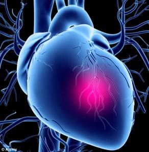 Penyakit-penyakit Inflamasi Jantung