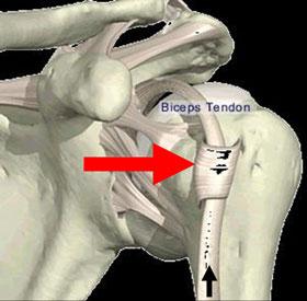 tendinitis bicepitalis
